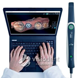 scanner_intraorale_CS3500
